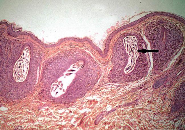 Demodex поражают волосяную луковицу, паразитируя в кожных покровах человека.
