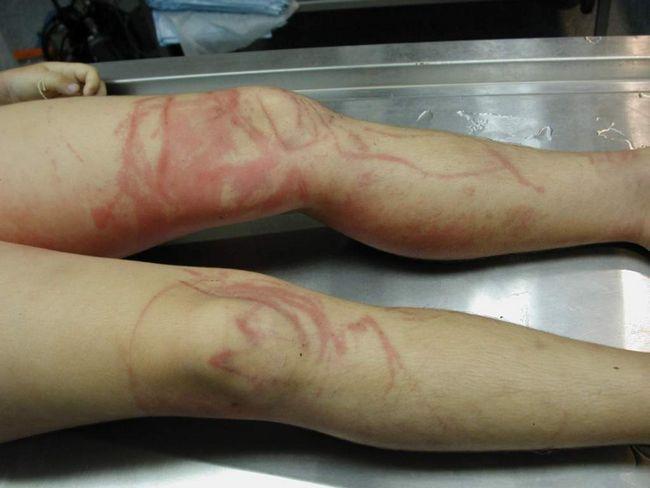 Često otrov meduza Irukandji ljudi umiru. Ujela oznake na tijelu za dugo vremena, podsjeća na sastanak s njom.