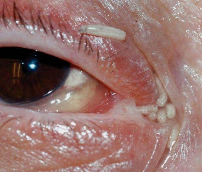 Сто двадцать личинок извлекли из глаз и ушей женщины